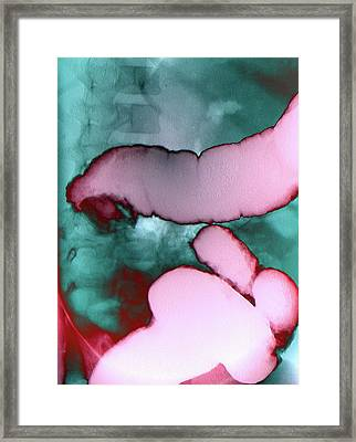 Intussusception Of The Intestines Framed Print