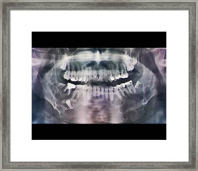 Jaw Cancer (ameloblastoma) Framed Print by Zephyr/science Photo Library