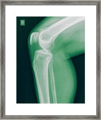 Knee X-ray Framed Print