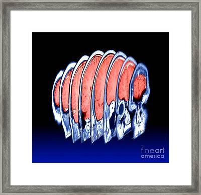 Magnetic Resonance Imaging Mri Framed Print