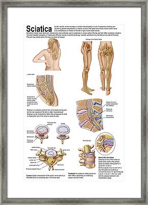 Medical Chart Showing The Signs Framed Print by Stocktrek Images