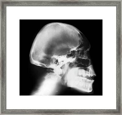 Microcephaly Framed Print by Zephyr