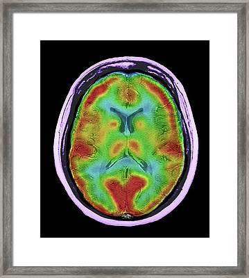 Normal Brain Blood Flow Framed Print by Zephyr