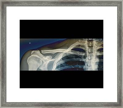 Normal Shoulder Framed Print by Zephyr