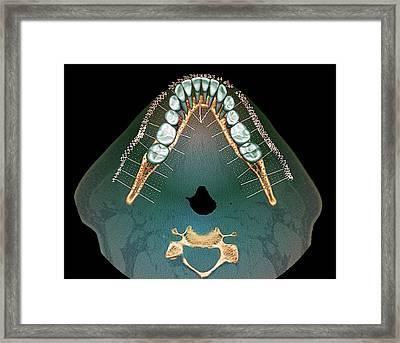 Normal Teeth Framed Print by Zephyr