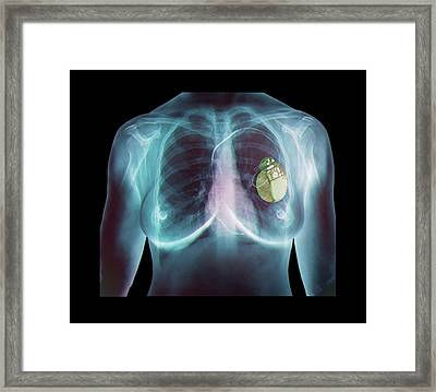 Pacemaker Framed Print by Zephyr
