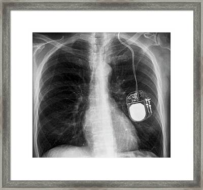 Parkinson's Brain Pacemaker Framed Print by Zephyr