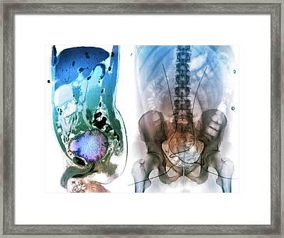 Post-operative Bladder Cancer Framed Print