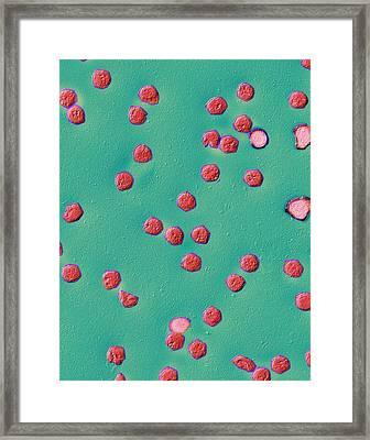 Ranavirus Virus Particles Framed Print