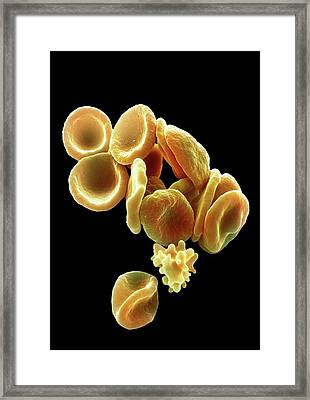 Red Blood Cells Framed Print by Steve Gschmeissner/science Photo Library