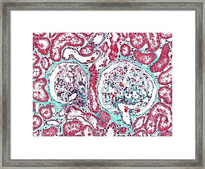 Renal Corpuscle Framed Print by Microscape