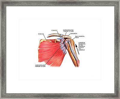 Shoulder Tendon Injury Framed Print by John T. Alesi