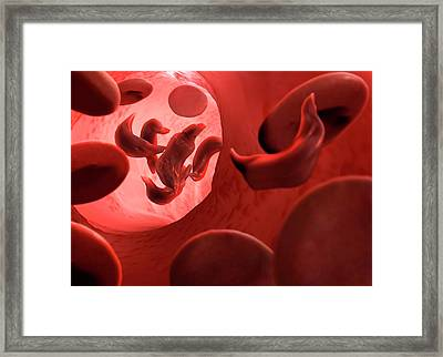 Sickle Cell Anaemia Framed Print by Tim Vernon