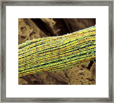 Skeletal Muscle Fibres Framed Print
