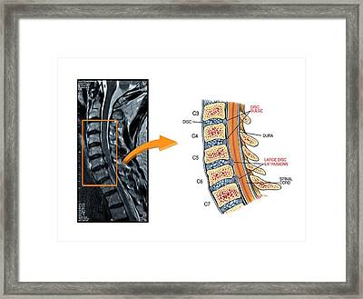 Slipped Discs In The Cervical Spine Framed Print