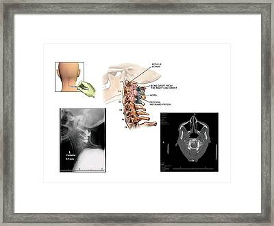 Surgery To Fuse The Cervical Spine Framed Print by John T. Alesi