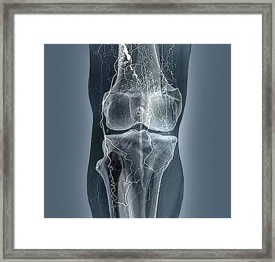 Thrombosis Framed Print