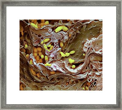 Thrush Infection Of The Tongue Framed Print