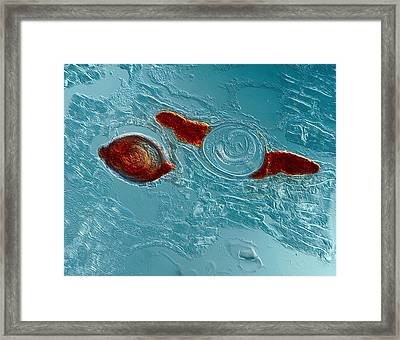 Trichinella Spiralis Framed Print by Eye of Science