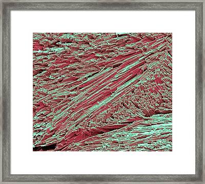 Uric Acid Crystals Framed Print by Steve Gschmeissner