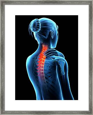 Human Neck Pain Framed Print by Sebastian Kaulitzki