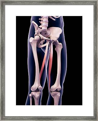 Thigh Muscles Framed Print by Sebastian Kaulitzki/science Photo Library