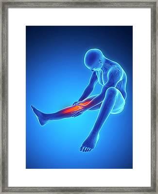 Human Knee Pain Framed Print