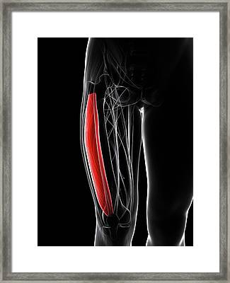 Thigh Muscle Framed Print by Sciepro/science Photo Library