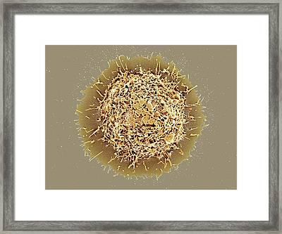 Alveolar Macrophage Framed Print by Microscopy Core Facility, Vib Gent