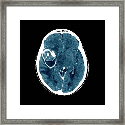 Aneurysm Framed Print by Zephyr