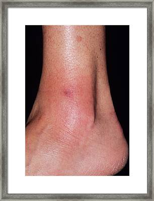 Cellulitis Framed Print by Dr P. Marazzi/science Photo Library