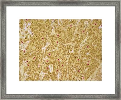 Cervical Cancer Framed Print by Steve Gschmeissner