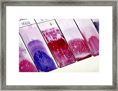 Cervical Smear Slides Framed Print