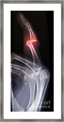 Dislocated Finger, X-ray Framed Print by Du Cane Medical Imaging Ltd.
