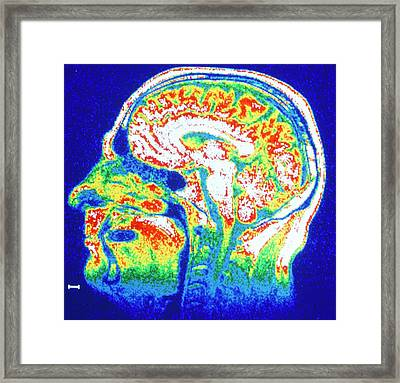 False-colour Nmr Scan Of The Head Framed Print by Cnri/science Photo Library