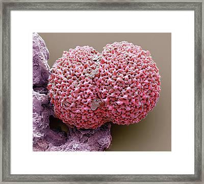 Foraminiferan Framed Print