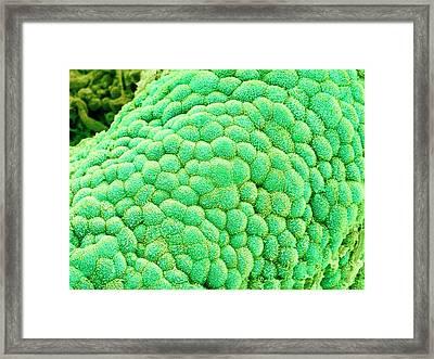 Gallbladder Surface Framed Print