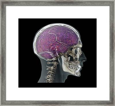 Human Head Framed Print by Zephyr