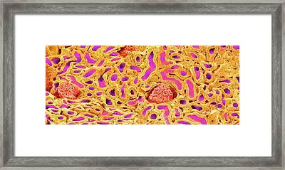 Kidney Glomeruli Framed Print by Susumu Nishinaga