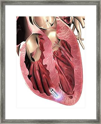 Leadless Pacemaker In Anterior Heart Framed Print