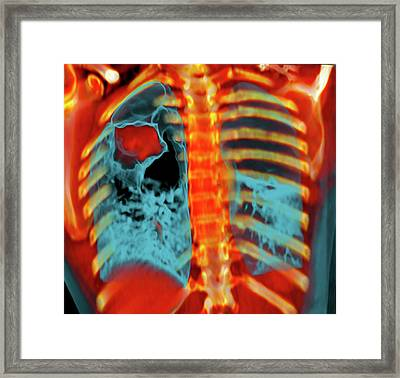 Lung Cancer Framed Print by Du Cane Medical Imaging Ltd