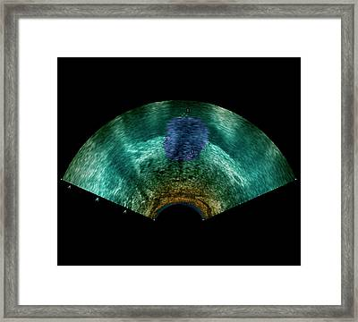 Prostate Tumour Framed Print by Zephyr/science Photo Library