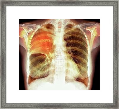 Pulmonary Consolidation Framed Print by Du Cane Medical Imaging Ltd