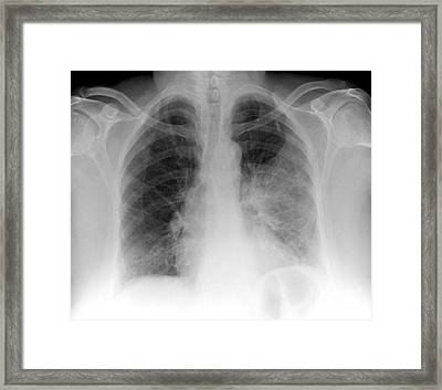 Pulmonary Consolidation, X-ray Framed Print by Du Cane Medical Imaging Ltd.