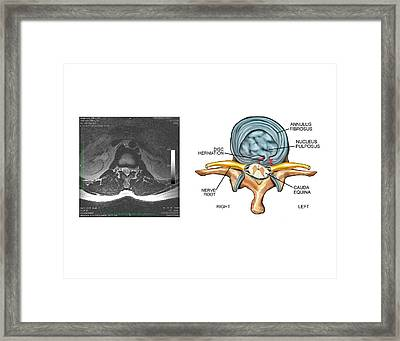 Slipped Disc In The Lumbar Spine Framed Print by John T. Alesi