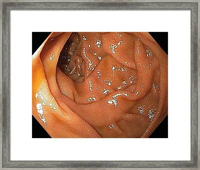 Small Intestine Framed Print