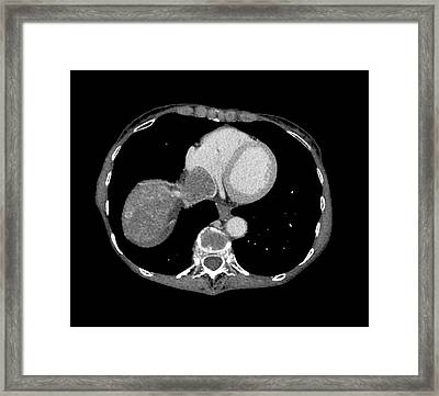 Smooth Muscle Cancer Framed Print