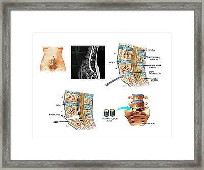 Surgery To Fuse The Lumbar Spine Framed Print by John T. Alesi