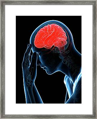 Headache Framed Print by Sciepro/science Photo Library