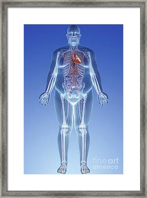 Obesity Framed Print by Science Picture Co